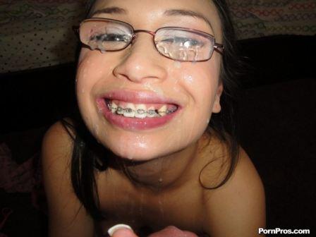 tube8 Thai Teen Braces Facial